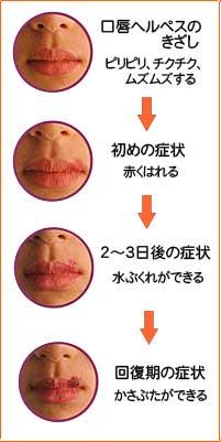 口唇ヘルペスの進行状況