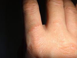 手湿疹 主婦湿疹 (1)